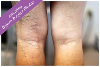 Vein Therapy Rochester NY