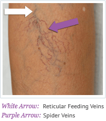 Cosmetic Sclerotherapy