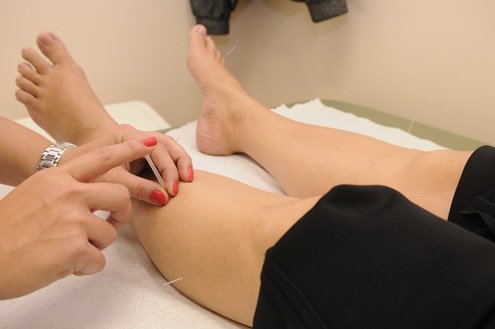 Acupuncture for Fine Lines and Wrinkles