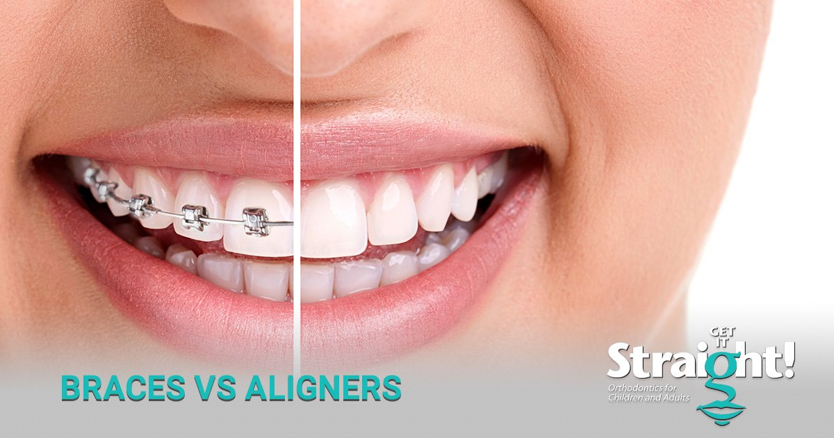 Making the Choice Between Metal Braces and Invisalign™