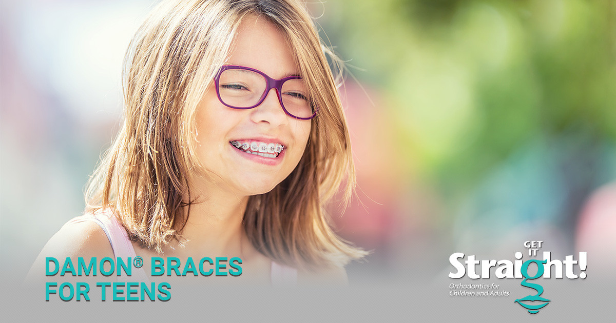 Why Get It Straight is #1 for Teen Braces in Rochester