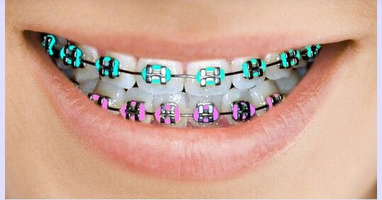 4 Simple Ways To Get Your Braces Off Faster