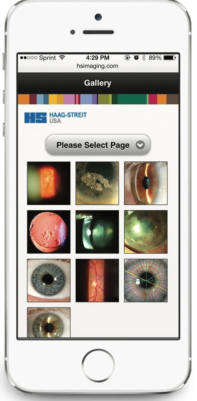 mobile gallery of eye images