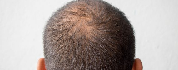 A Guide to Alopecia