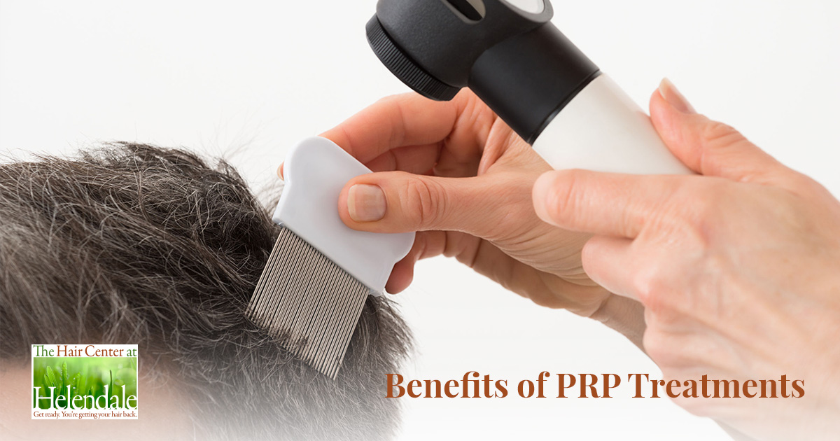 Why Many Choose PRP Treatment for Hair Loss