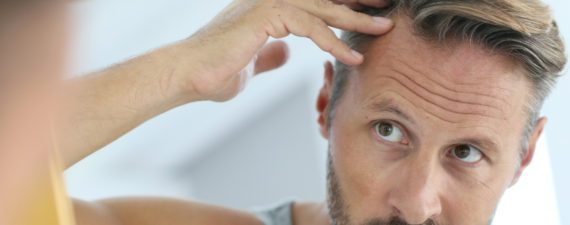 7 Causes of Male-Patterned Baldness (And What To Do About It)