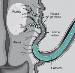 Uterine Fibroid Embolization Rochester