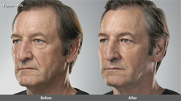 Juvederm for Males Before and After Photo