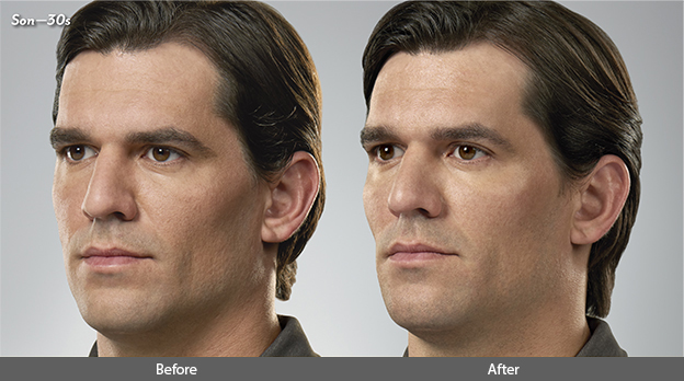 Juvederm for Men Before and After Photo