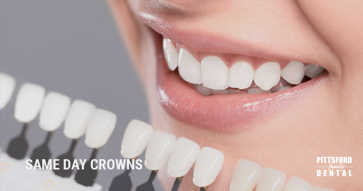 Same Day Crowns Fabricated Onsite for Your Convenience