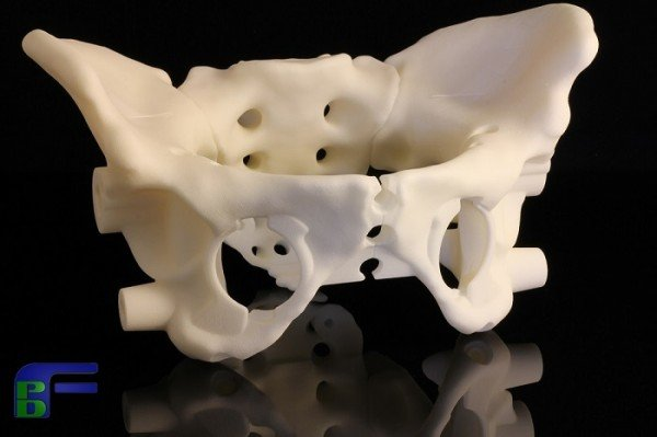 3D Printed Medical Body Part