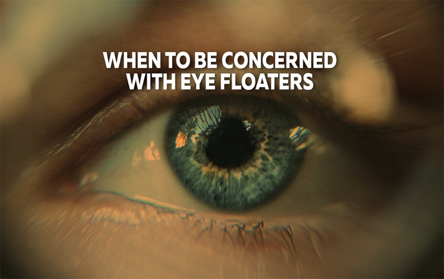 When To Be Concerned With Eye Floaters