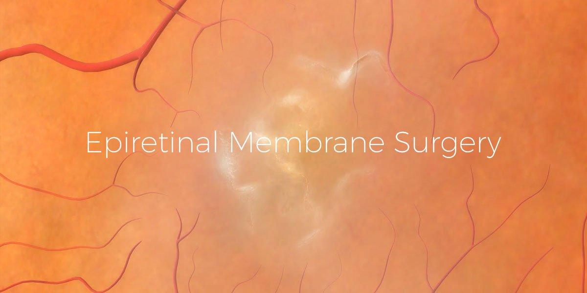 Epiretinal Membrane (ERM) Surgery: Everything You Need to Know