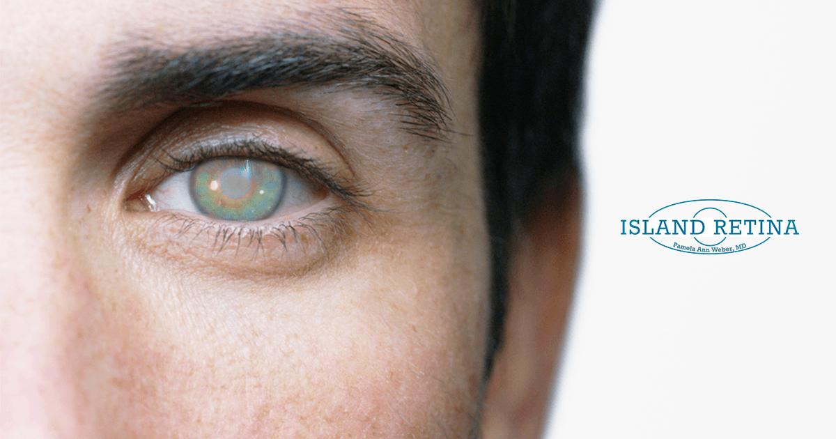 Don't Delay Treating Cataracts