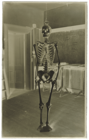 A Large Antique Glass Plate Negative Of A Human Skeleton