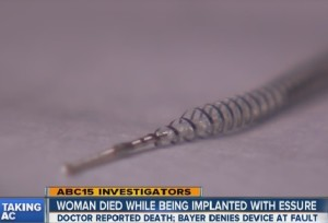 Essure Birth Control Implant